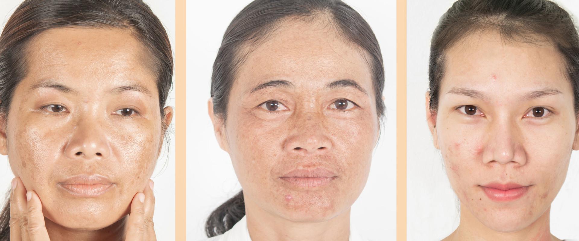 Melasma Verwijder Tips van Huidspecialist Marie