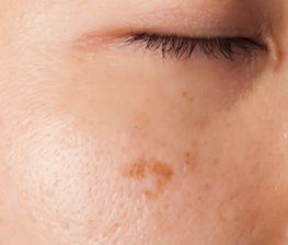 pigmentvlekken gezicht natuurlijk verwijderen