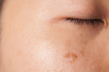 pigmentvlek in gezicht