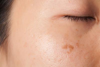Bruine vlekken op de huid