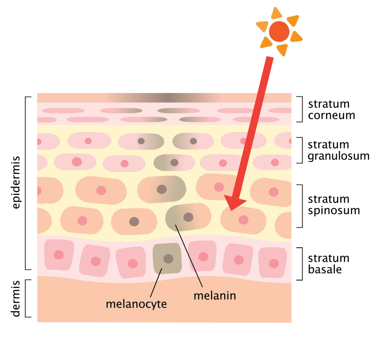 Hoe ontstaan pigmentvlekken