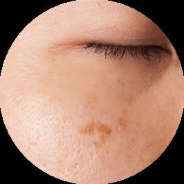 pigmentvlek in het gezicht verwijderen