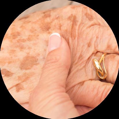ouderomsvlekken op handen