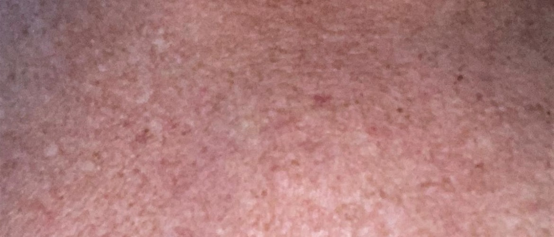 Poikiloderma van civatte: gesprongen adertjes, pigmentvlekken en huidverdunning