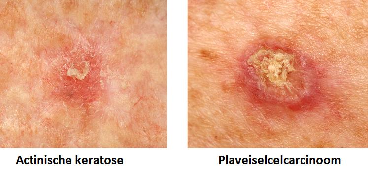 verschil actinische keratose plaveiscelcarcinoom