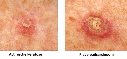 actinische keratose plaveiselcelcarcinoom