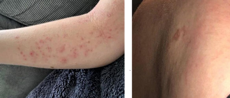 Gastblog 10: Allergisch contacteczeem