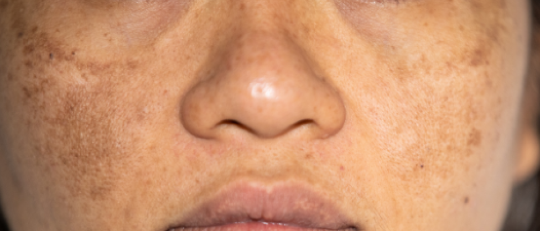 Melasma: bruine vlekken in gezicht