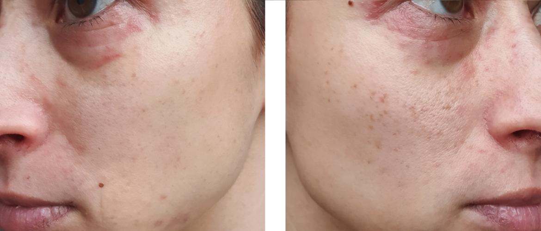 Gastblog 8. Dermatitis een ontsteking van de huid