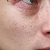 dermatitis perioralis