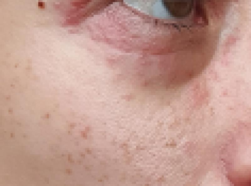 dermatitis periocularis