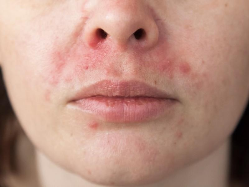 Dermatitis perioralis clownseczeem