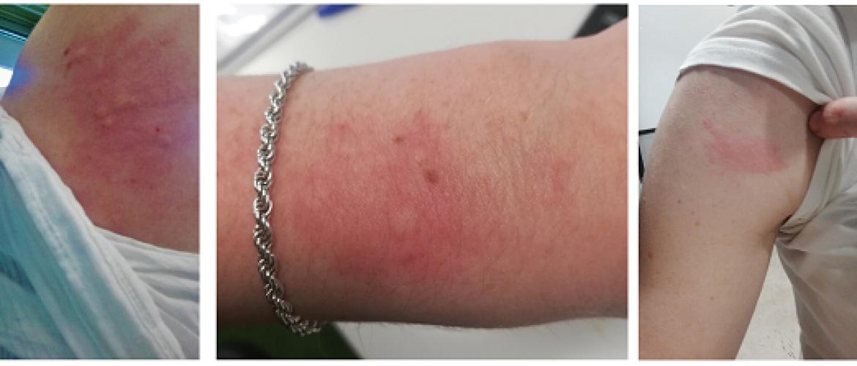 Urticaria: jeukende rode galbulten