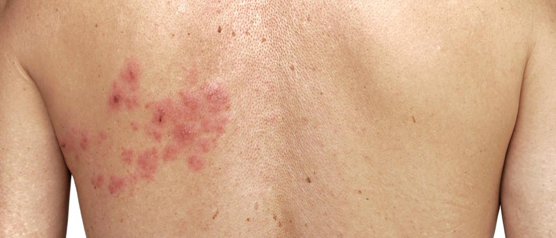 Herpes zoster: gordelroos