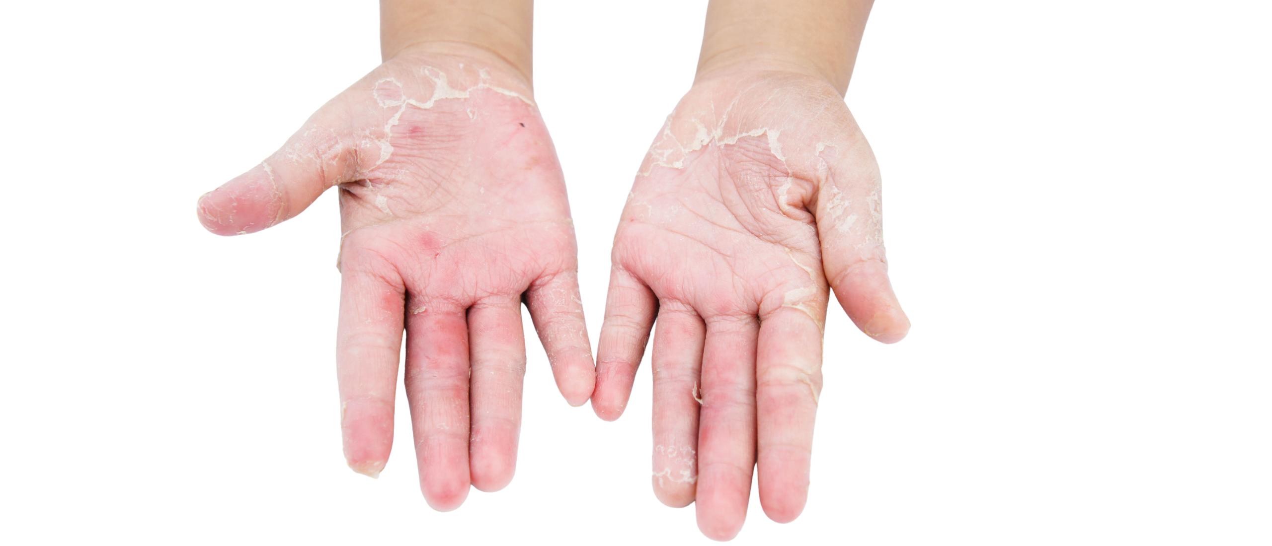 Handschimmel: rode vlekken op de handen met schilfers