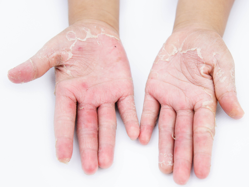 hoe ziet huidschimmel eruit