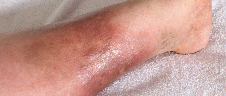 Hypostatisch eczeem: rode uitslag op de onderbenen