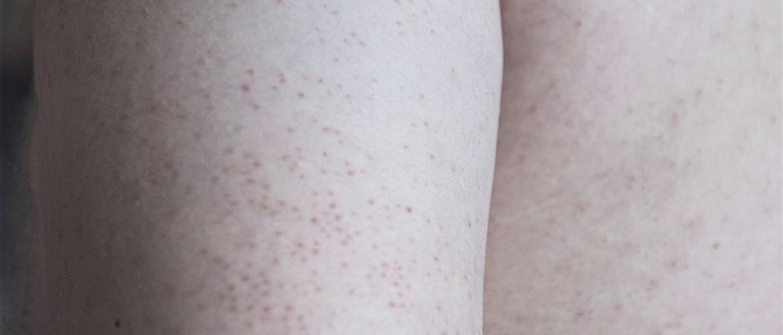 Gastblog 6. Keratosis pilaris op mijn armen, enkels en billen