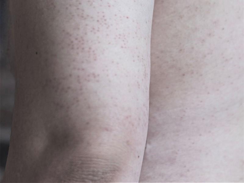 rode puntjes op de huid
