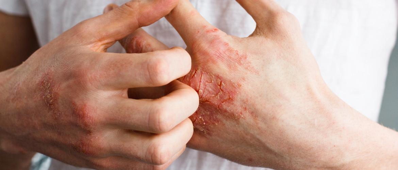Ortho-ergisch eczeem: rode, jeukende, schilferende huid met kloven
