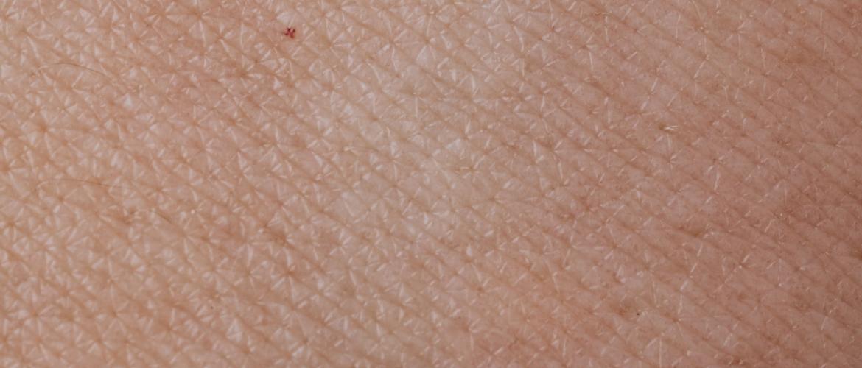 Een droge huid