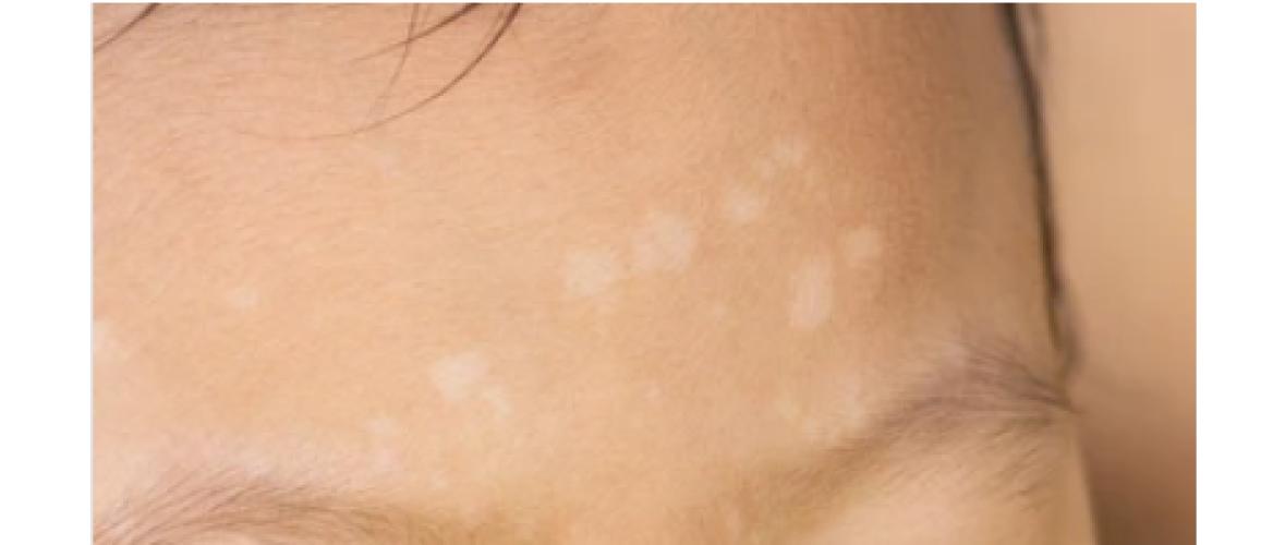 Pityriasis alba: witte vlekjes op de huid