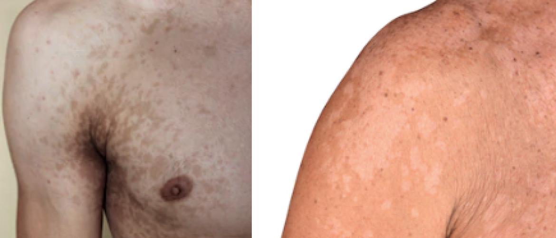 Pityriasis versicolor: vlekjes op de huid