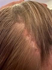 psoriasis op hoofdhuid