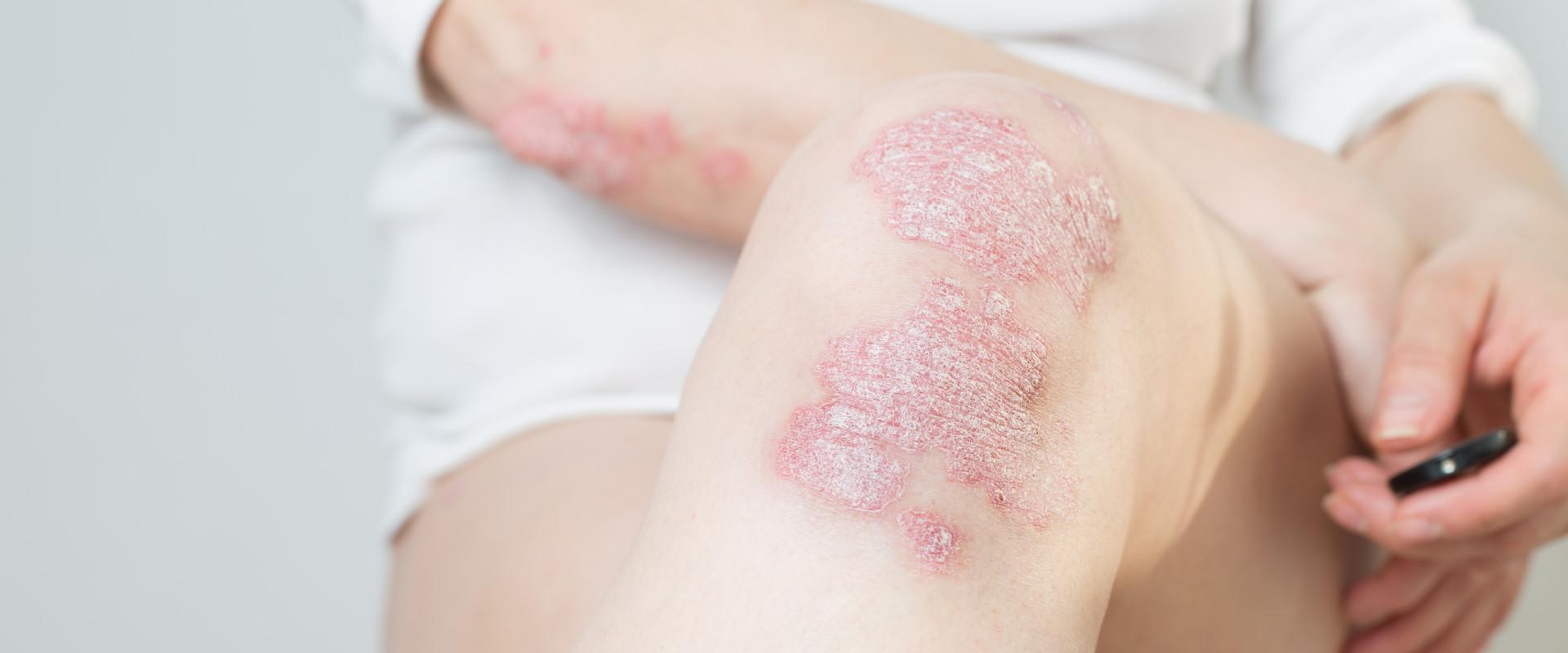 Psoriasis: roze, schilferende, jeukende plekken