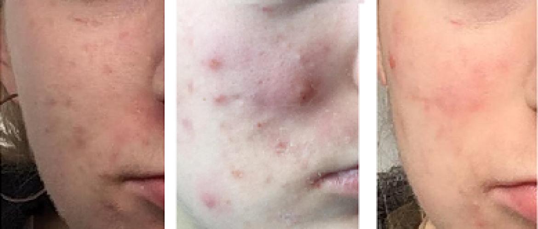 Gastblog 9. Roaccutane kuur acne