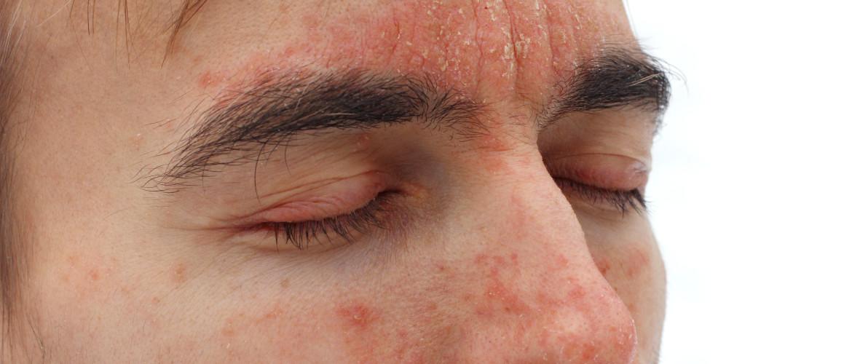 Seborroïsch eczeem: rode huid met schilfertjes