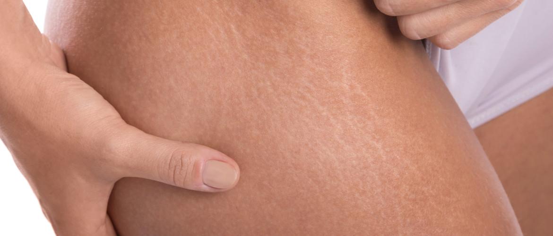 Striae: striemen op de huid