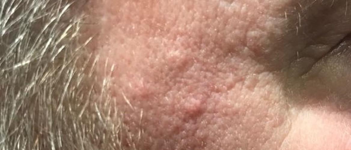Talgklier hyperplasie: huidkleurige bultjes gezicht
