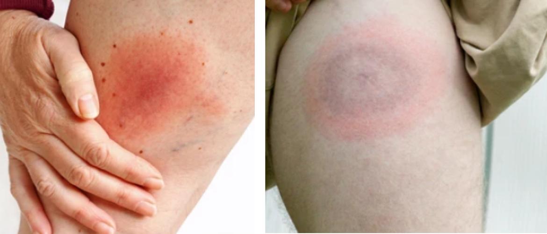 Tekenbeet: een rode kring op de huid