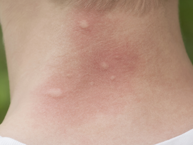 zwelling muggenbeet verminderen