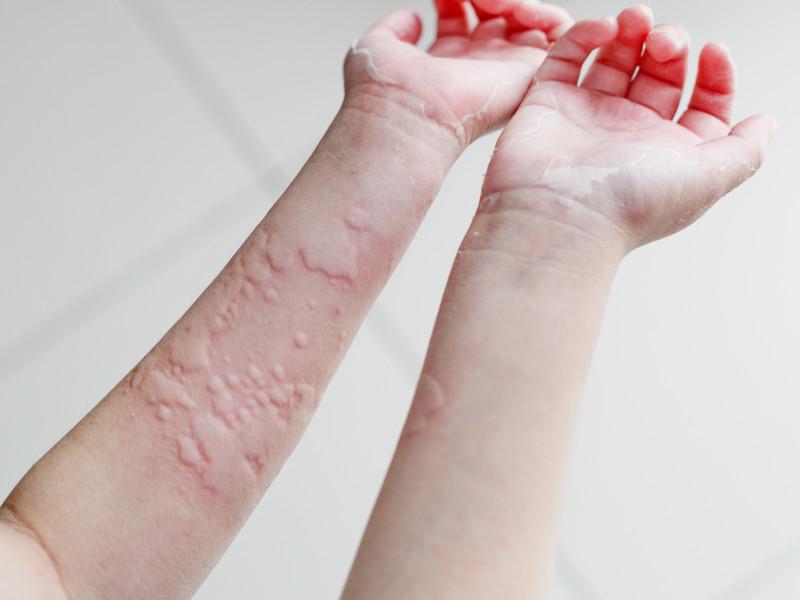 urticaria op armen