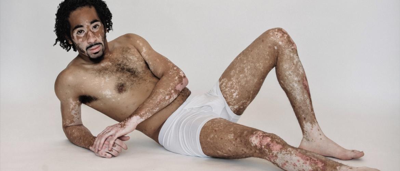 Vitiligo: witte plekken op de huid