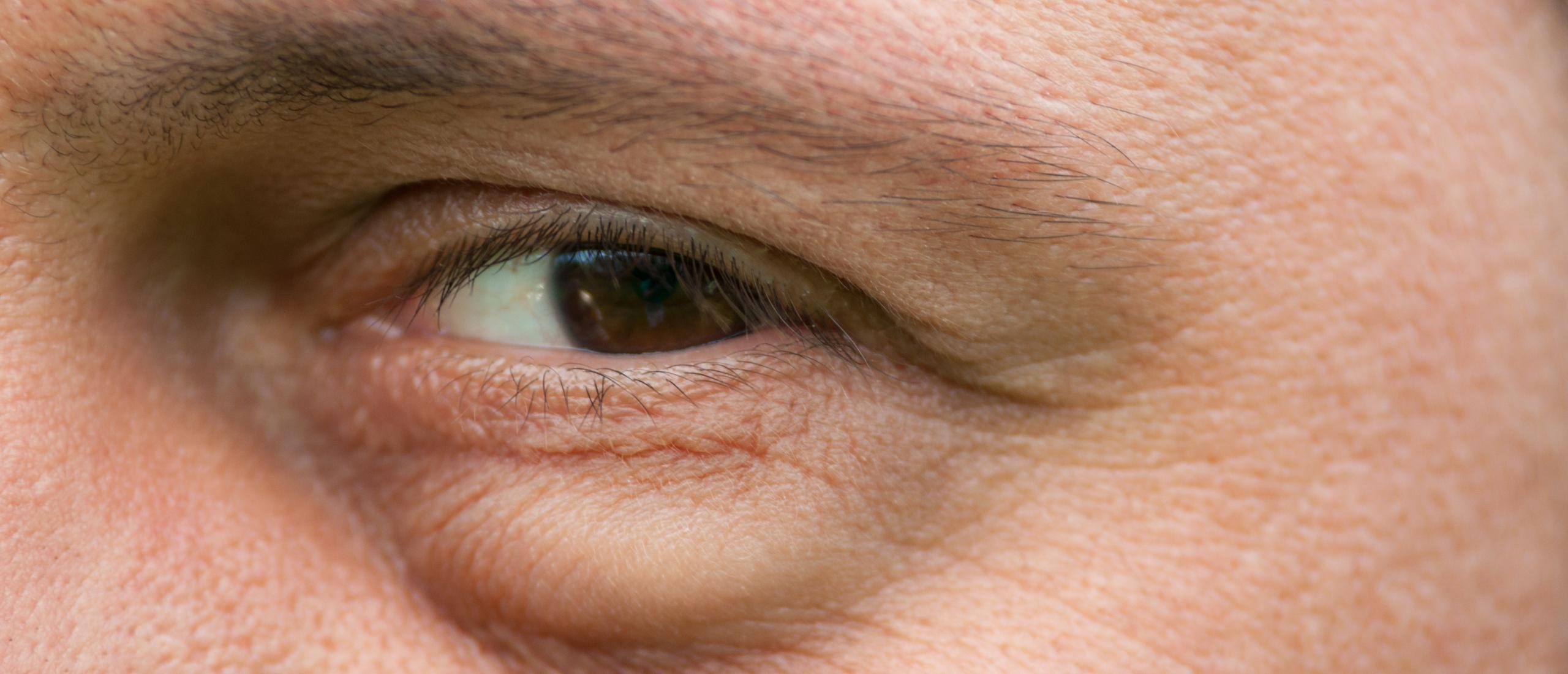 Vermoeide ogen: wallen onder ogen