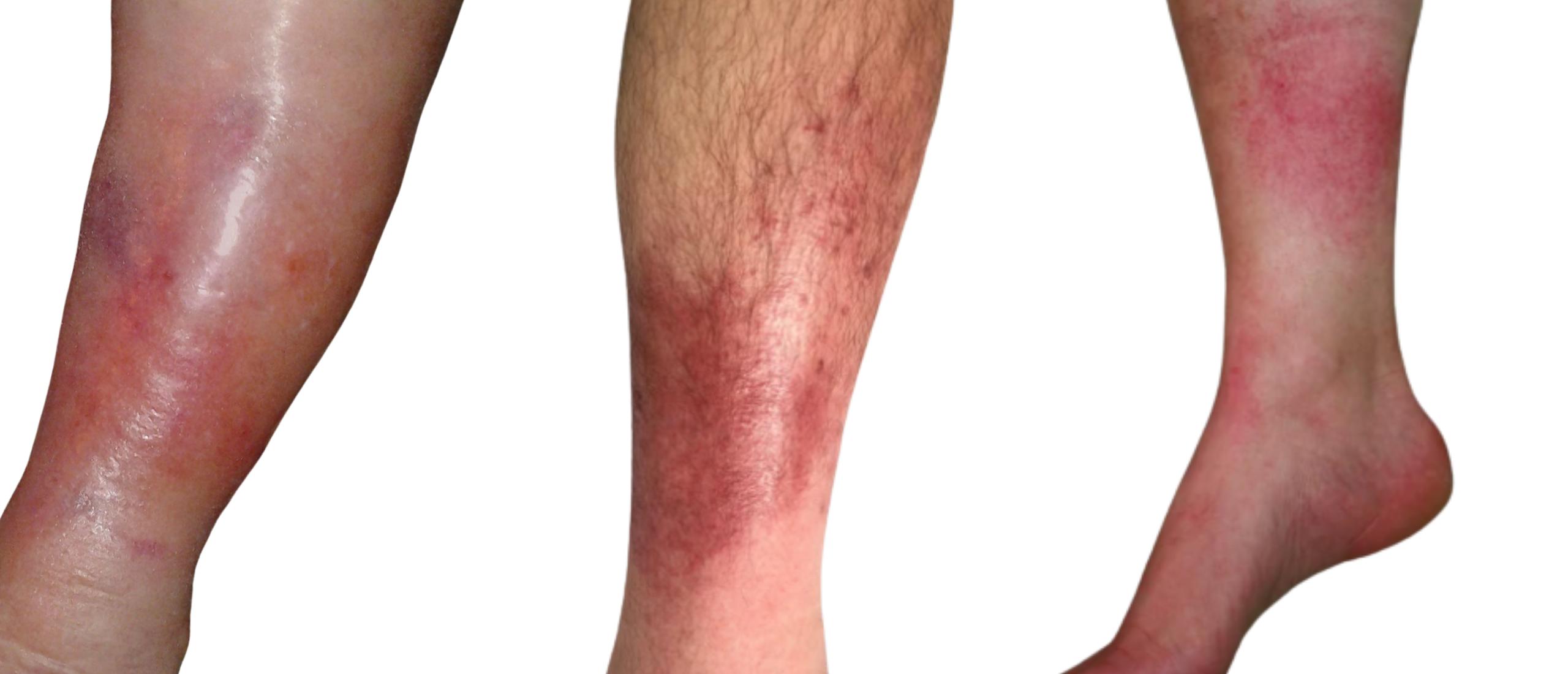 Wondroos: gezwollen, rode, huid