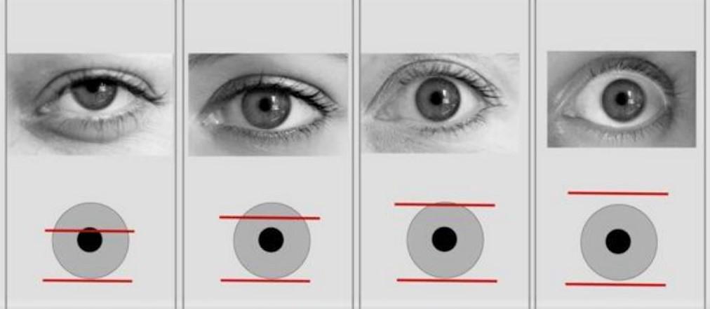 Oogleden op de oogbol