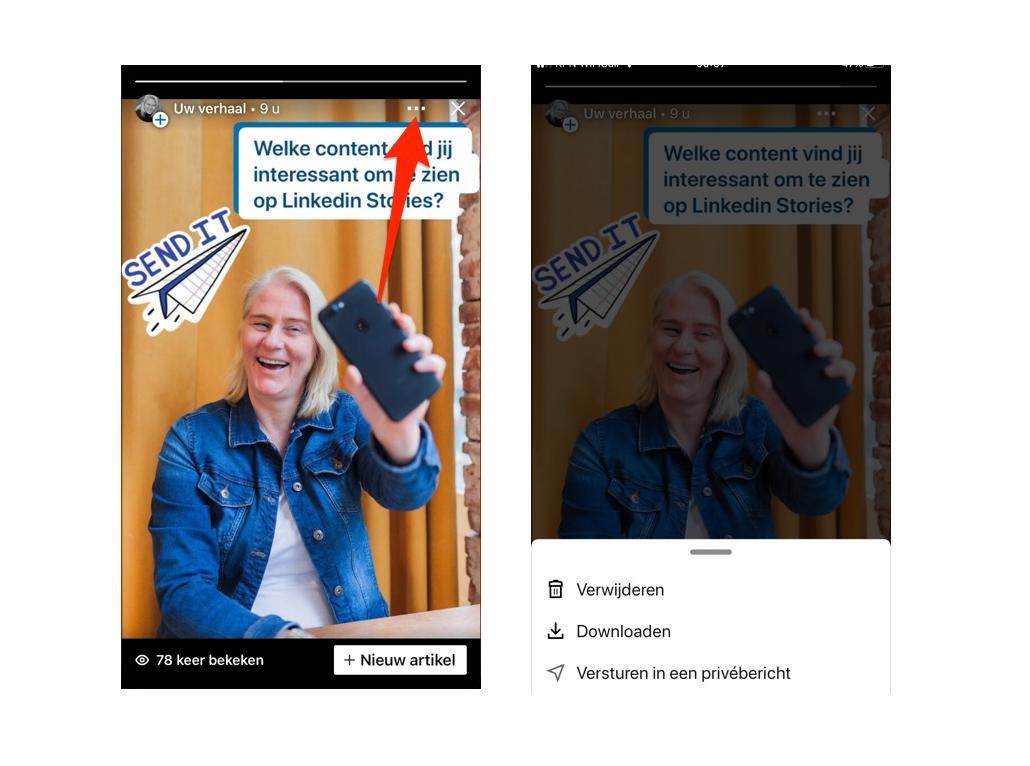 linkedin stories verwijderen of linkedin stories delen via privebericht