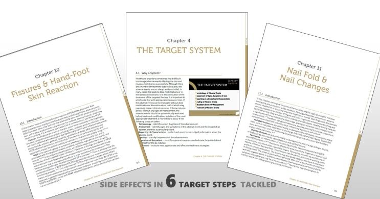 Download the free sample chapters of the TARGET-Book
