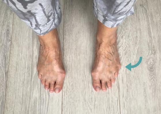 Tailor's bunion voetentraining