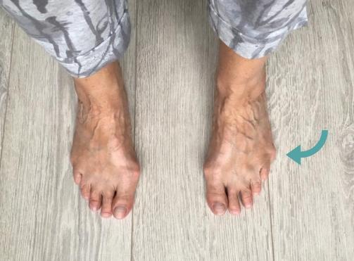 tailors-bunion-voetentraining-2