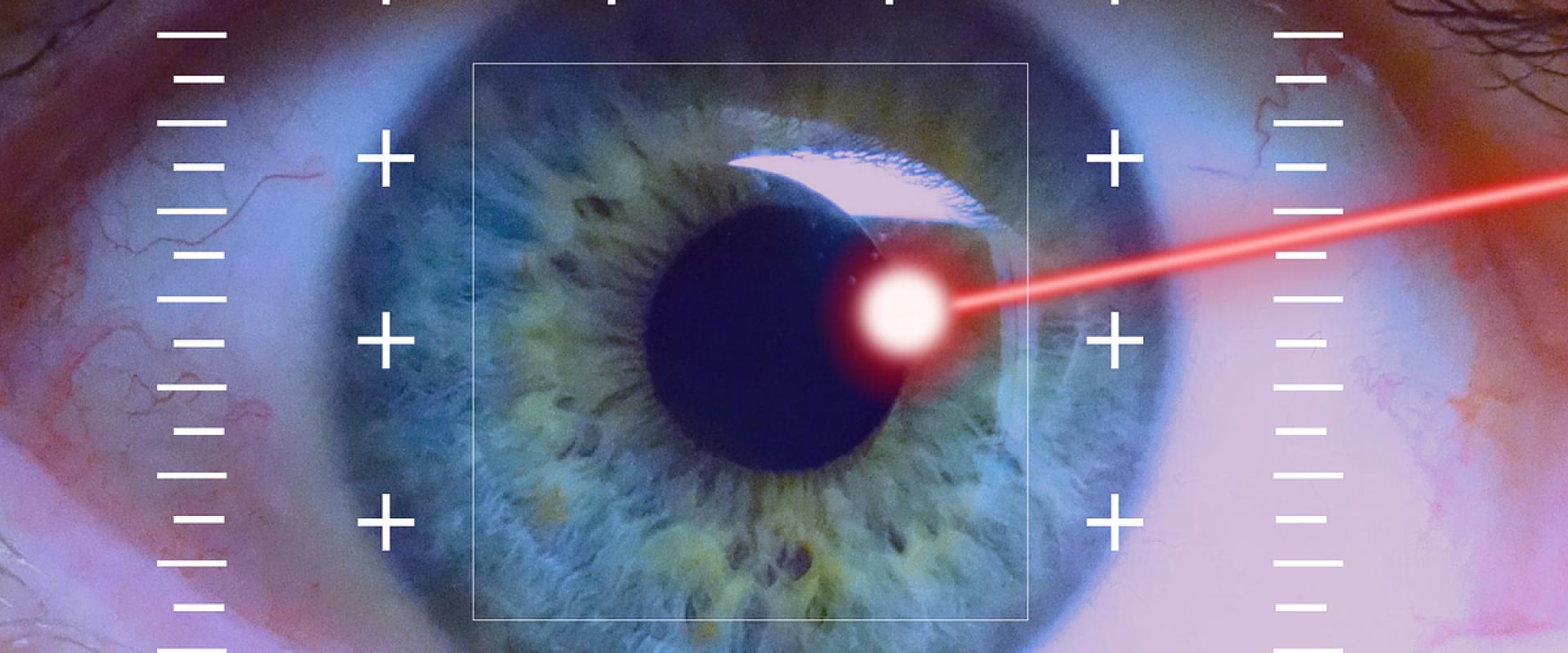 Je kunt je ogen ook laten laseren