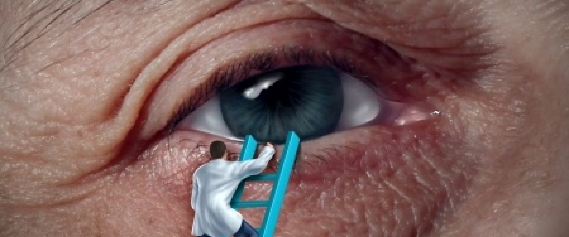 Lensimplantaten, brrr!!