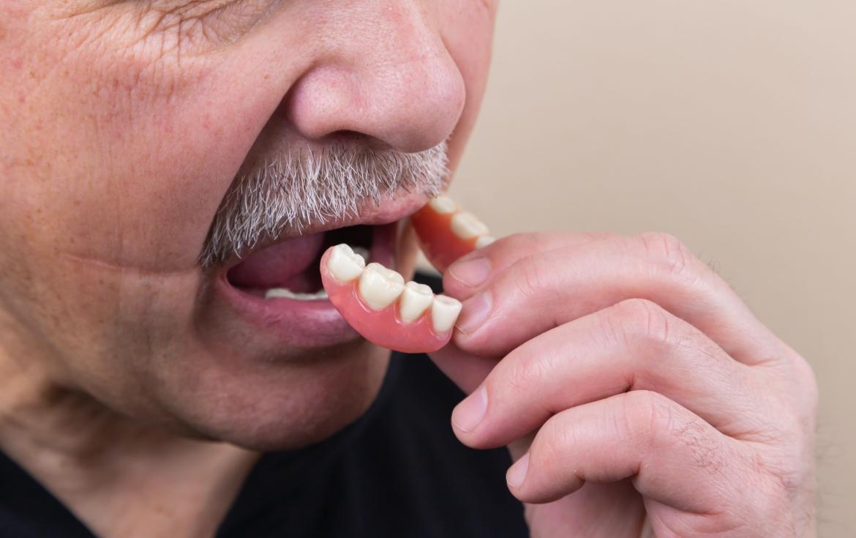 Dental Implants: Best Options & Alternatives