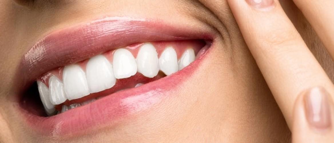 History of Teeth Whitening