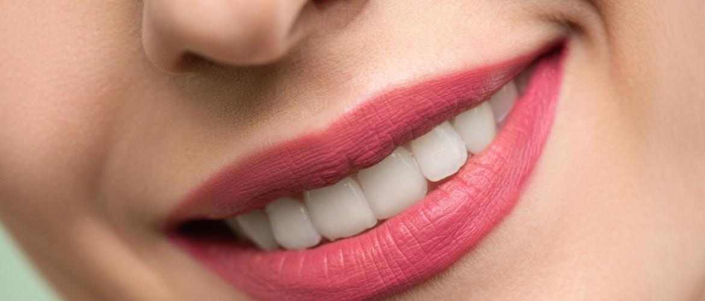 Teeth Whitening Pen or Whitening Strips