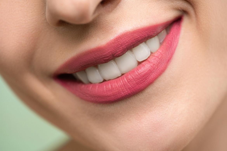 teeth whitenign pens